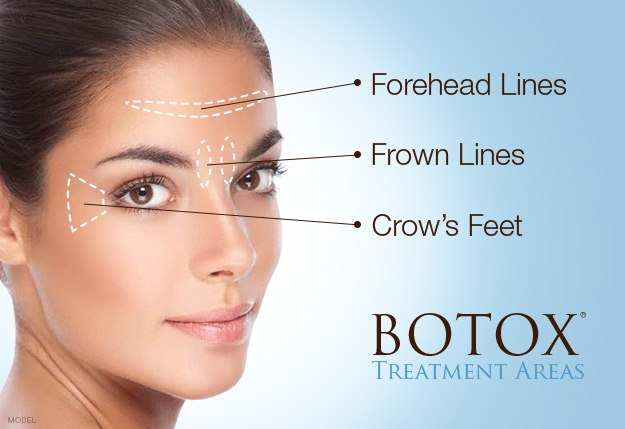 BOTOX® Cosmetic for Forehead Lines, Frown Lines and Crow's Feet