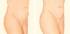 Tummy Tuck Drawing